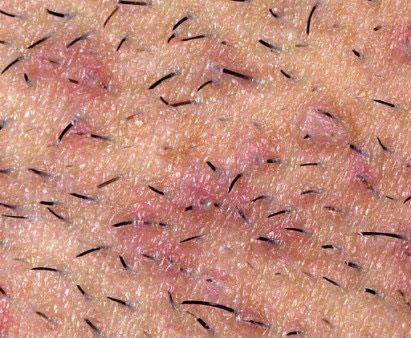 c3a3a5ff49b5 Bouton apres rasage  Découvrez son origine pour mieux le prévenir !