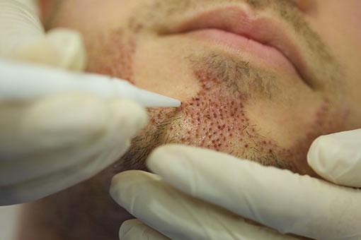 greffe de barbe recouvrez une barbe en quelques heures. Black Bedroom Furniture Sets. Home Design Ideas